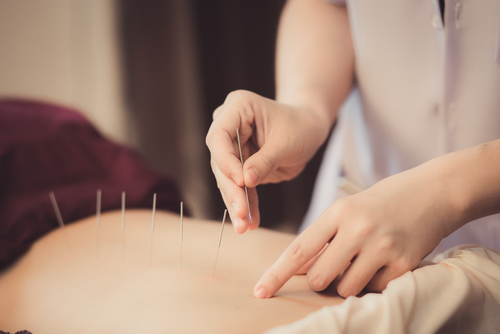 using acupuncture for back pain